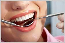 Smile Gallery - Scheumann Dental Associates